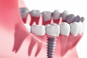 Single Dental Implant Image