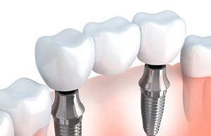 Multiple Dental Implant Image