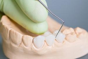 A Teeth Sets 01
