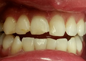 A Patient Before Dental Treatment images 01