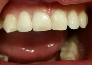 A Patient After Dental Treatment images 02